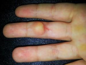 imagem tumor de mão (2)